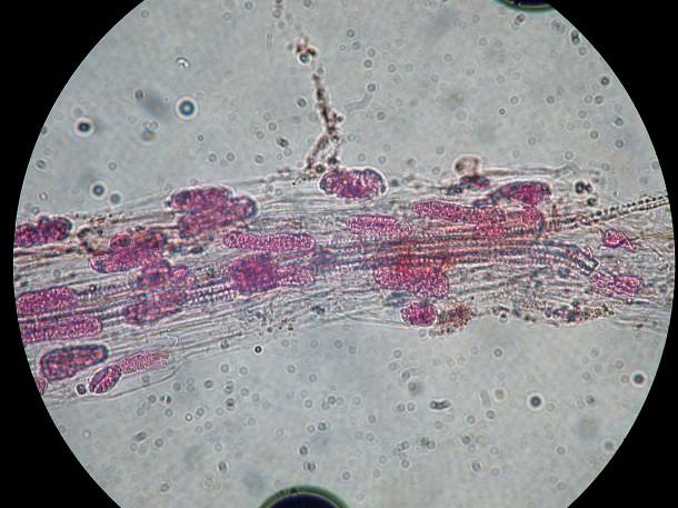 A penészgomba mikroszkóp alatt